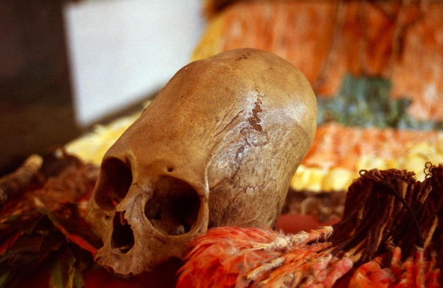 This skull was deformed by binding wood to the skull of a new born baby, a common Inca practice. Yucay valley, Peru
